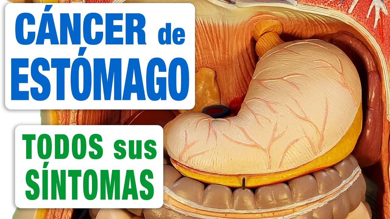 que sintomas son de cancer en el estomago