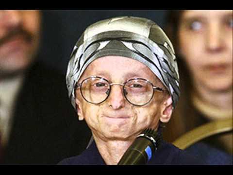 Výsledek obrázku pro progerie