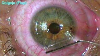 Y precio cirugia astigmatismo laser miopia