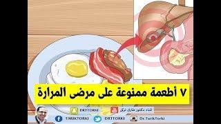 7 أطعمة ممنوعة على مرضى المرارة | الاطعمة الممنوعة على مريض المرارة