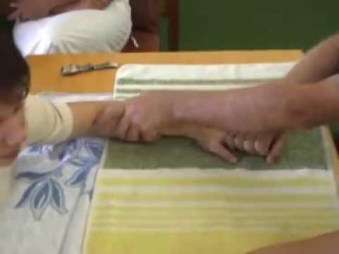 Как разработать руку после перелома: упражнения