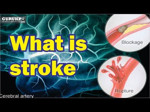 What Is Stroke GNM BSc Nursing Medical Surgical Nursing Gurukpo