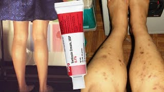 How to Get Rid of Dark Spots on Legs Using Chemical Peel or Tretinoin Cream