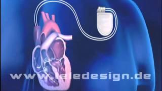 HGL 059 Zweikammer-Herzschrittmacher  - SD PAL/ HGL 059 Dual chamber pacemaker  - SD PAL