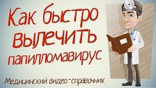видео вирус папилломы человека лечение