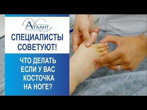 Что делать если у вас косточка на ноге?  Специалисты советуют при вальгусной деформации стопы