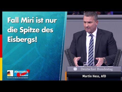 Fall Miri ist nur die Spitze des Eisbergs! - Martin Hess - AfD-Fraktion im Bundestag