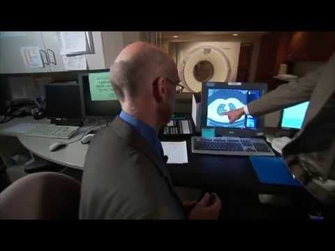 Lung Cancer Screening - Mayo Clinic