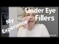 Under Eye Fillers - My Experience