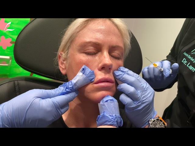 Dallas Lip Augmentation with Dr. Lam