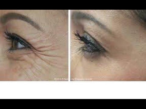 Receita Caseira Para Acabar Com Ruga Na Area Dos Olhos,  Serum De Vitamina C Para Pele_Facil