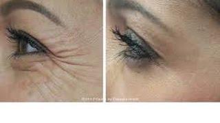 Dica Caseira Para Acabar Com Ruga Na Area Dos Olhos – Serum De Vitamina C