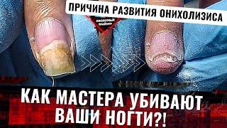 Пришла клиентка а там Жесткий онихолизис ногтей Виды ожог ногтевой пластины боковой онихолизис