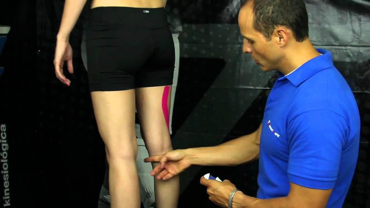 bulto en tendon detras de la rodilla