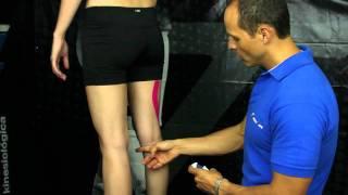 La parte en dolor la en de la posterior curva pierna