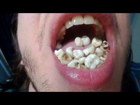 Sonar con caida de diente de leche