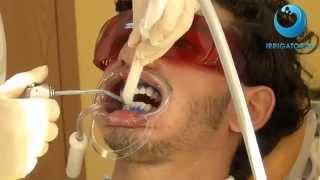 BEVERLY HILLS профессиональная технология отбеливания зубов(http://www.irrigator.ru/category_56.html - всё для отбеливания зубов вы найдете здесь! Наши зубы сегодня подвергаются регуляр..., 2014-07-09T10:43:53.000Z)