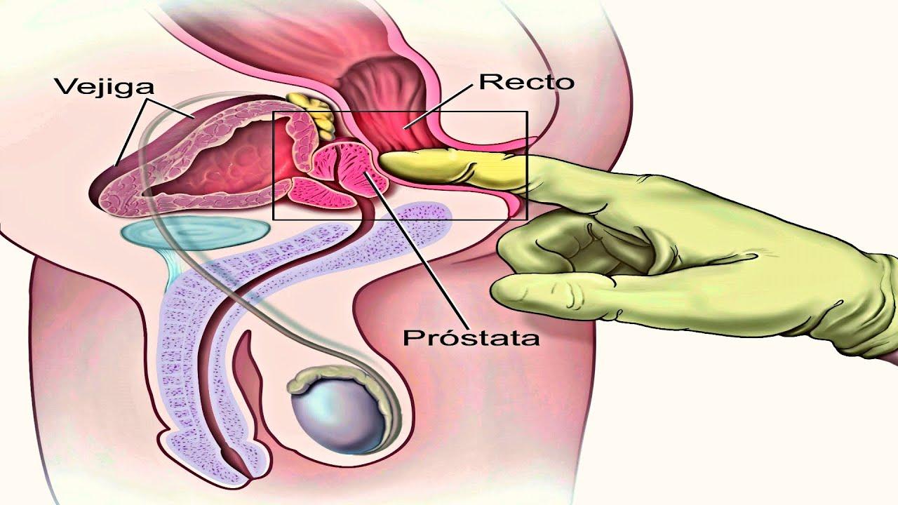 cáncer de prostata medicina natural del