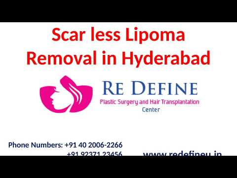 Scar less Lipoma Removal in Hyderabad by Dr Harikiran Chekuri - YouTube