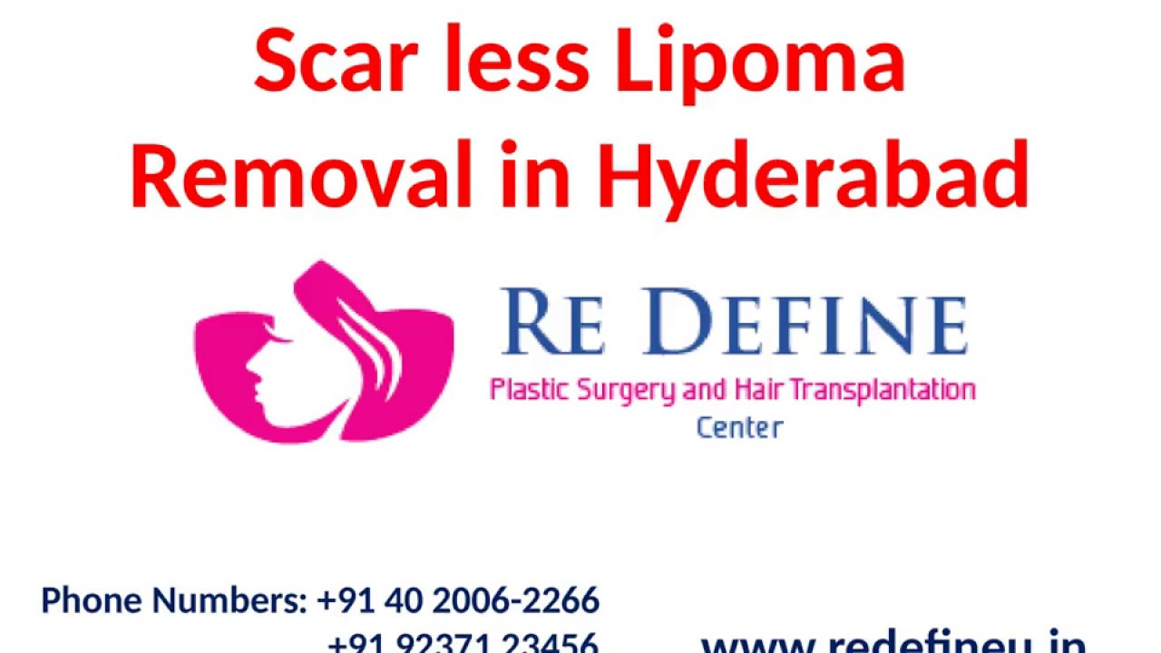 Scar less Lipoma Removal in Hyderabad by Dr Harikiran Chekuri - YouTube