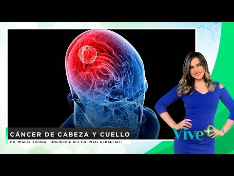 Cáncer de cabeza y cuello  | Vive Más - #ConsultorioEnLínea