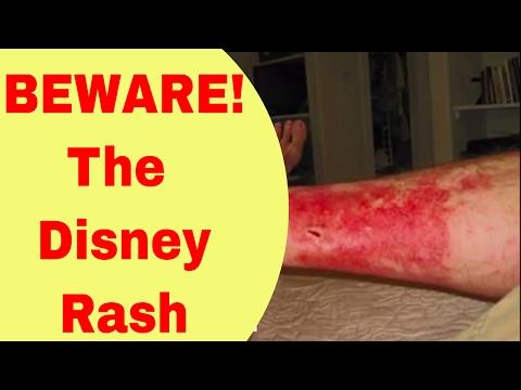 BEWARE! The Disney Rash