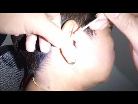 70 Year Old Woman's Hearing Loss & Dry Earwax (Keratin Flake) Build-up