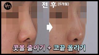 [코성형] 콧볼 줄이기 + 코끝 올리기 (미스코)
