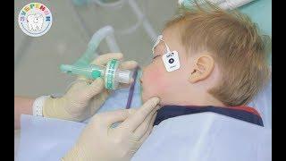 Лечение зубов под наркозом в детской стоматологической клинике
