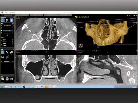 CBCT Anatomical Review of the Maxillary Region