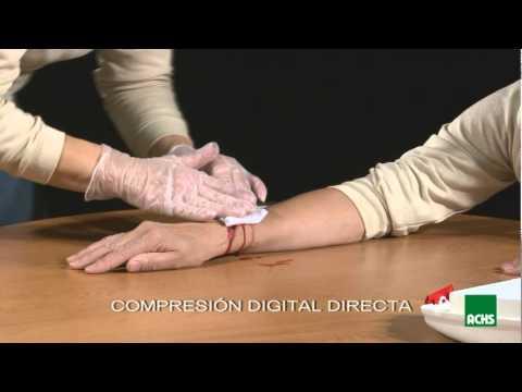 tipos de hemorragias y sus primeros auxilios