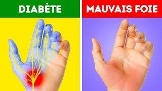 12 Problèmes de Santé Que Tes Mains T'indiquent