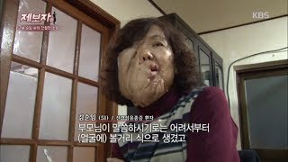제보자들 - 51세 순임 씨의 간절한 소망.20180115