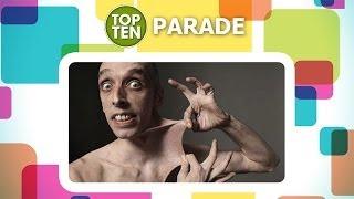 Le 10 malattie rare più incredibili
