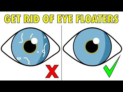 the-2-step-solution-to-naturally-get-rid-of-eye-floaters