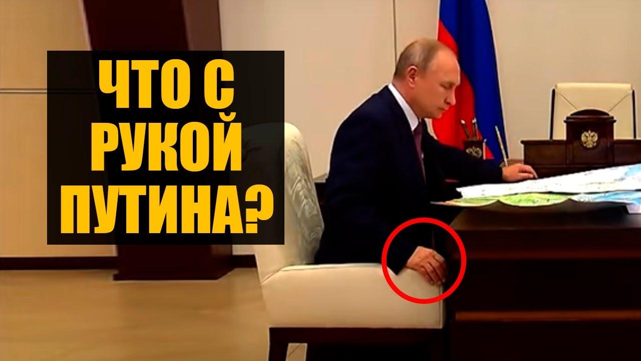 Льготы Сечину, больная рука Путина и борьба с иноагентами