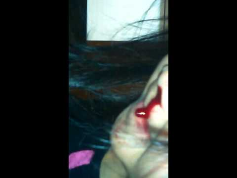 Too much blood in my sisters nose falling in the ground too.