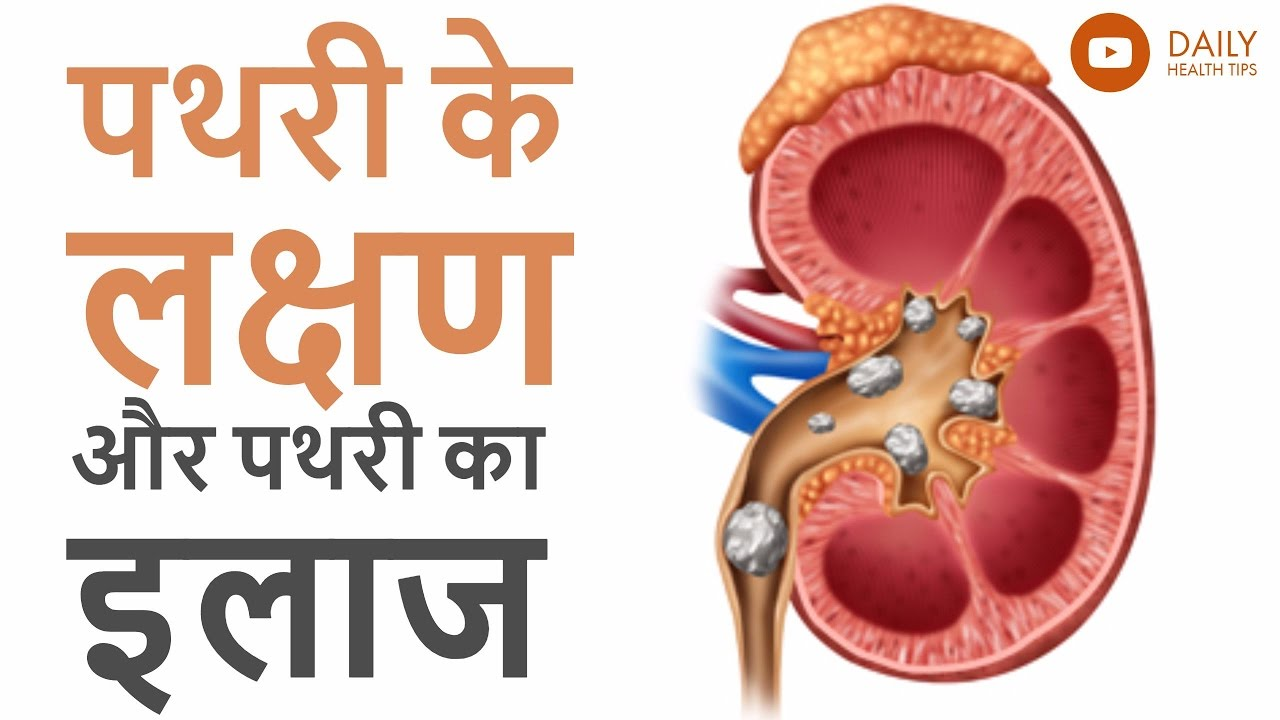Image result for पथरी