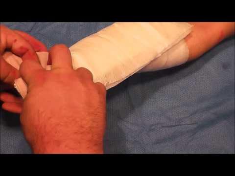 Splint Like A Pro Thumb Spica Splint Doovi