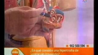 Hipertrofia del ventrículo izquierdo Médicos Mira la Vida