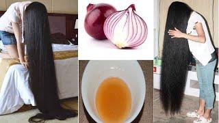 СУПЕР Средство для роста волос Как быстро отрастить волосы Как ускорить рост волос супер составом