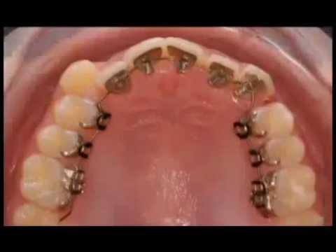 Guarda come l'Apparecchio Incognito muove i tuoi denti
