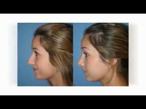 Rhinoplasty Surgeons Fort Lauderdale's Best  - Plastic Surgery - Nose Jobs