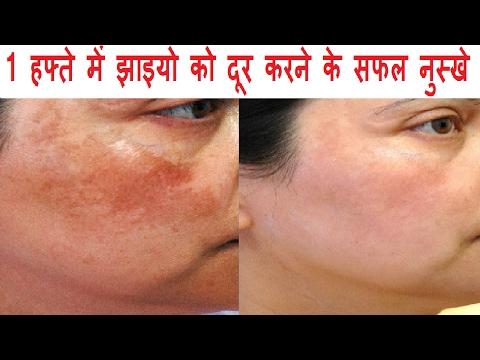 1 हफ्ते में झाइयो को दूर करने के सफल नुस्खे Skin Pigmentation Home Treatment In Hindi