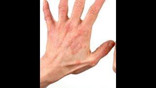 Comment traiter les démangeaisons de la peau