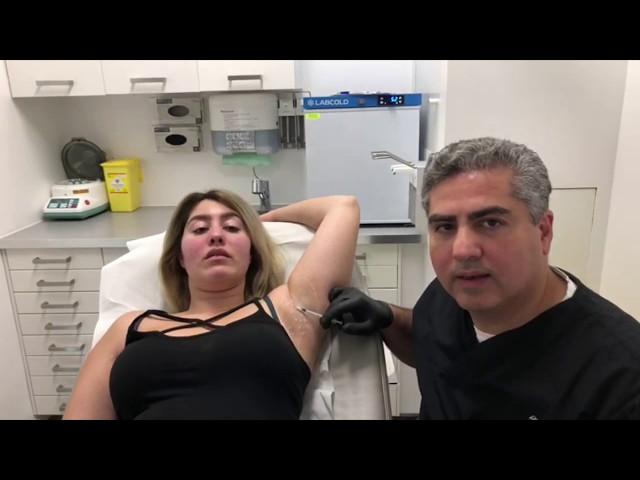 Botoxbehandeling tegen overmatig transpireren, Medikliniek Amsterdam