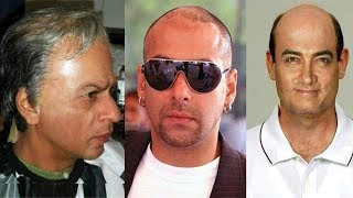 Famous Bollywood Stars Who Done Hair Transplant Surgery | Shocking