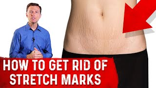 How to Get of Rid Stretch Marks After Pregnancy
