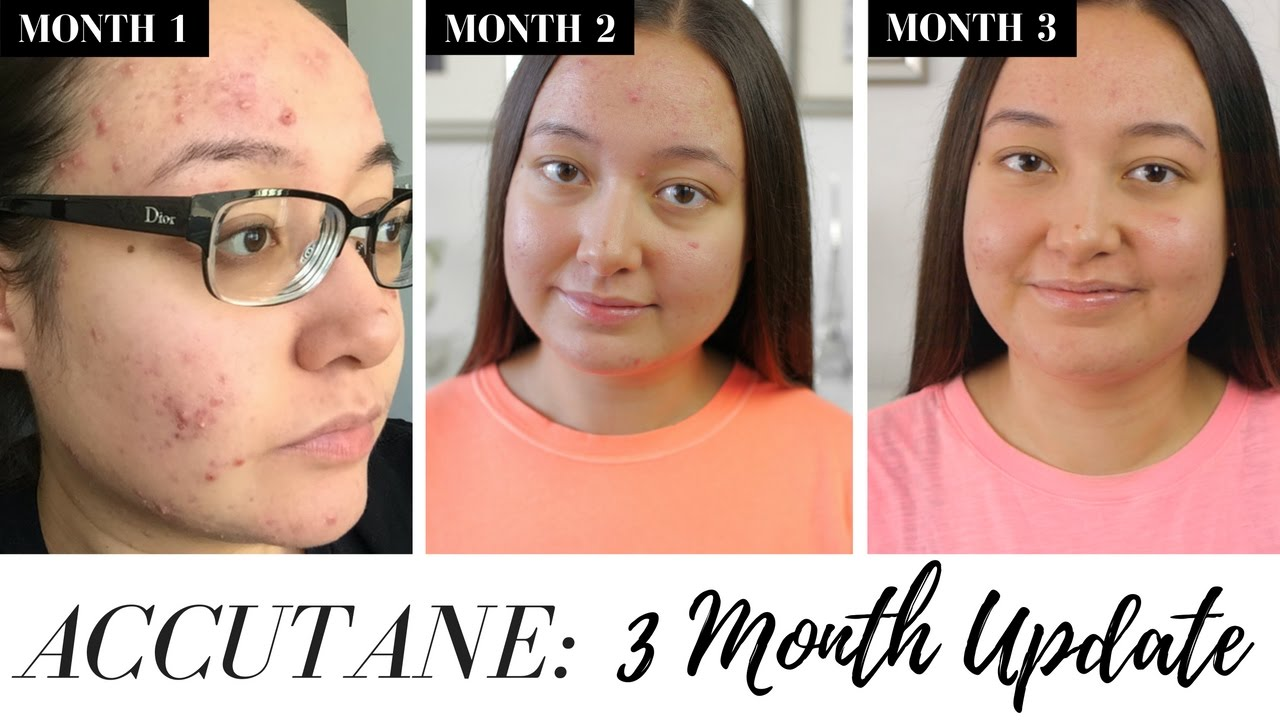 My Accutane Journey | Three Months on Accutane | Side ...