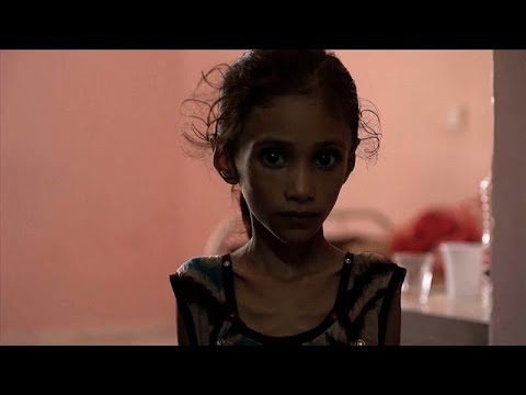 ازدياد أعداد الأطفال الذين يعانون سوء التغذية نتيجة الصراع في اليمن …  - نشر قبل 10 ساعة